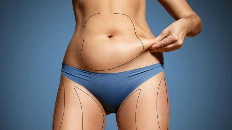Višak kože na trbuhu nakon poroda