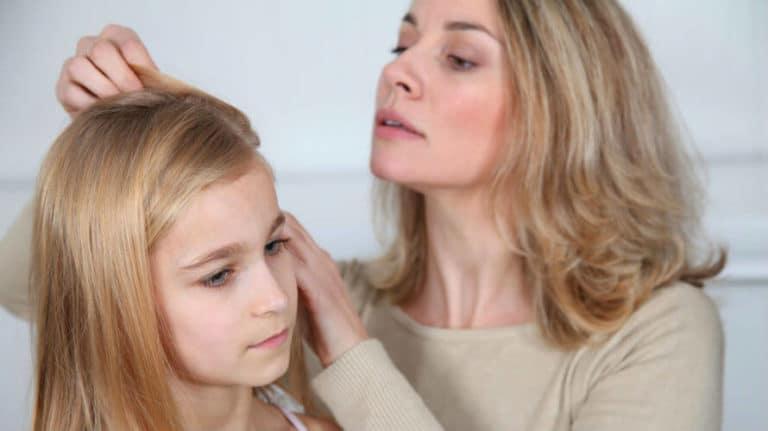 Uši u kosi – uzroci, simptomi i liječenje