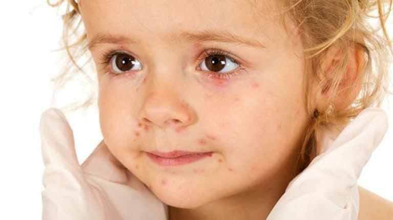 Rubeola – uzroci, simptomi i liječenje
