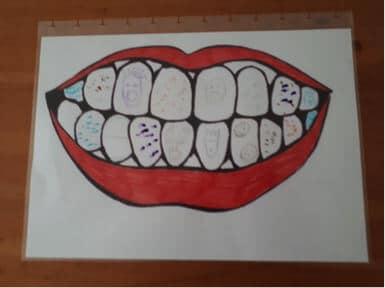 Pranje zubi