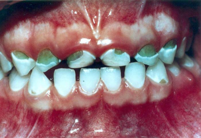 Mliječni zubi