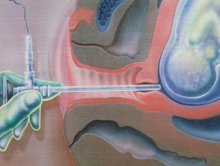 Amnioskopija