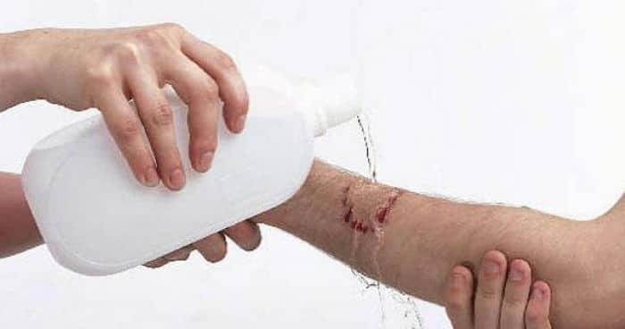 Fiziološka otopina za (otvorene) rane