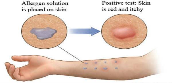 Kožno testiranje na alergije