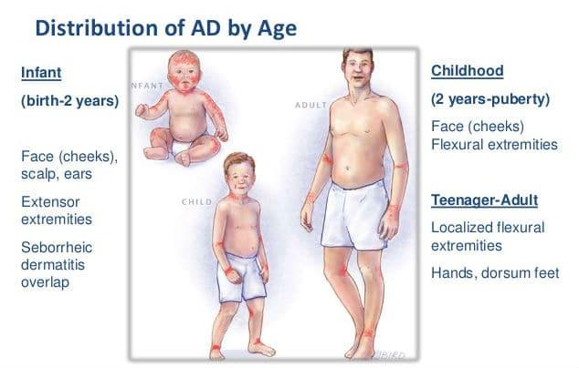 Atopijski dermatitis kod beba, djece i odraslih - mjesto pojavljivanja