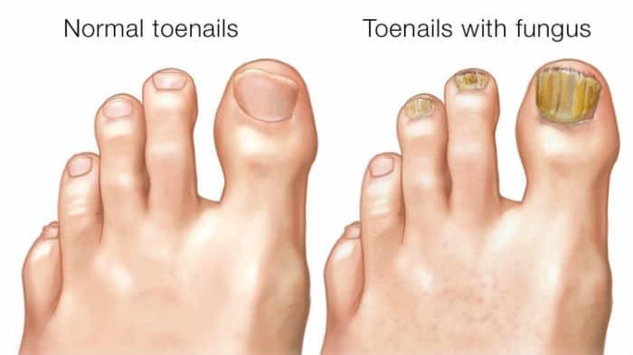 Prikaz zdravih noktiju na nogama i noktiju zaraženih gljivicama
