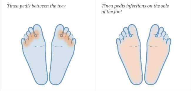 Tinea pedis između prstiju i na stopalima