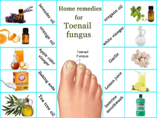 """Prirodni """"lijekovi"""" za gljivice na noktima"""