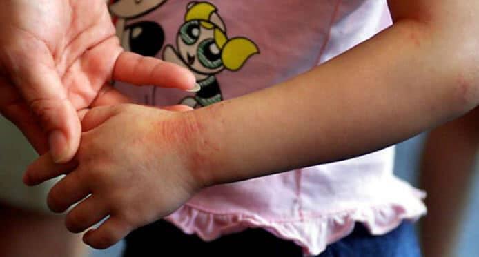 Prikaz atopijskog dermatitisa na ručnom zglobu djeteta