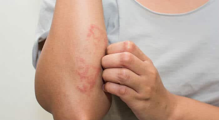 Prikaz atopijskog dermatitisa na podlaktici odrasle osobe