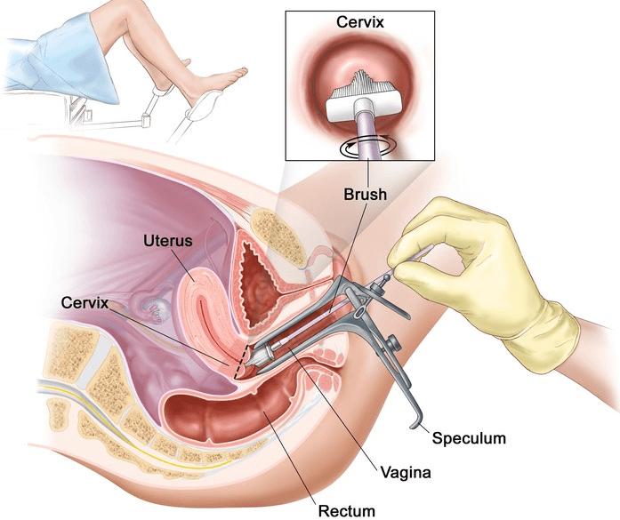 Prvi ginekološki pregled - kako izgleda i kako se pripremiti?