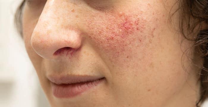 Rosacea (rozacea) - zašto nastaje i kako se liječi?