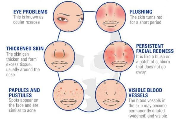 Simptomi rosacee