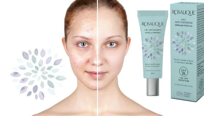 Rosacea (rozaceja) - zašto nastaje i kako se liječi?