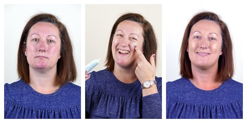 Rosalique krema - fotografije korisnika prije i nakon korištenja